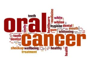 Why It's Important to Get Regular Oral Cancer Screenings