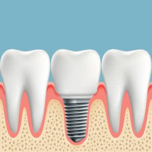 did you know a dental crown can replace a lost tooth